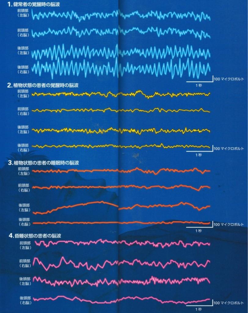 脳波比較(健常者覚醒時・植物状態覚醒時・植物状態睡眠時・昏睡状態)